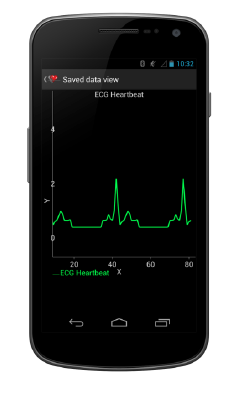 Android Bluetooth Electrocardiogram - Real-Time Charting Screen in Action