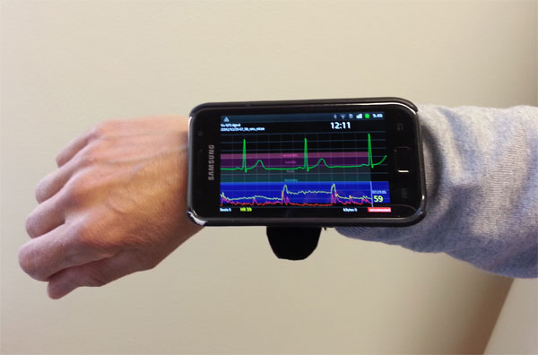 android bluetooth elctrocardiogram